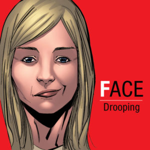 Face Drooping